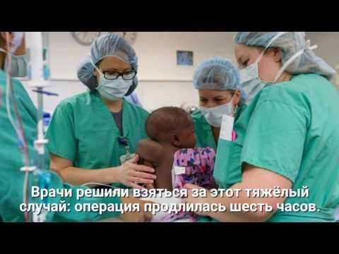 В Чикаго врачи спасли ребенка со странной мутацией