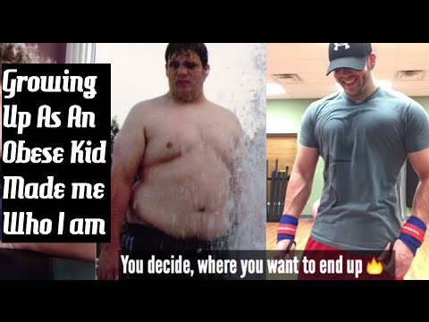 Growing Up As An Obese Kid || Fat Meets Fire