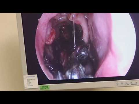 Surgical precision bloody booger removal