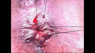 Stapler Hemorrhoidectomy step by step