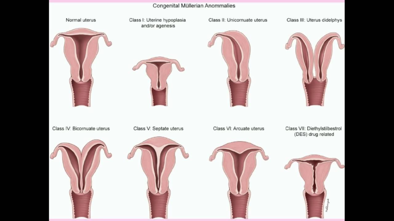 Congenital Uterine Abnormalities Crash Medical Review Series