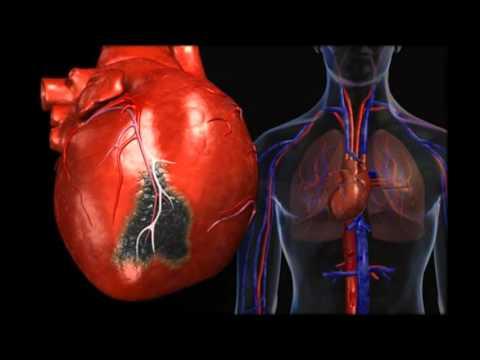 Болит сердце и тяжело дышать