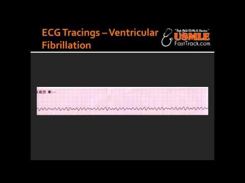 ECG Tracings -- Ventricular Fibrillation