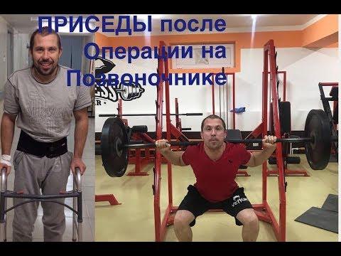 Грыжи и Протрузии 💥 ПРИСЕДАНИЯ после операции на позвоночнике Евгений - Узбекистан 🇺🇿