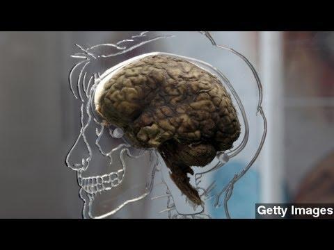 $1.4B E.U. Brain Project Has Scientists Slug It Out In Media