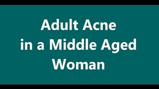 Adult Acne in a Middle Aged Woman - Part I