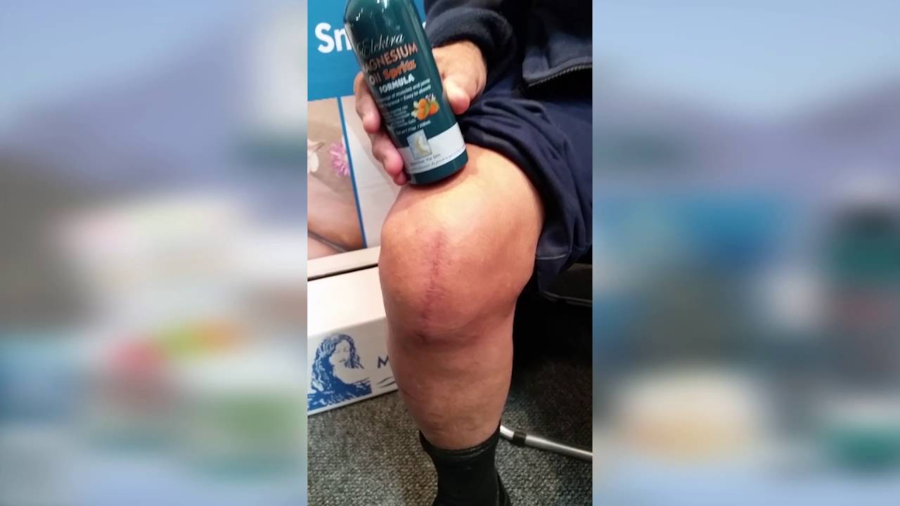 Swelling From Knee Reconstruction Subsided With Transdermal Magnesium 1
