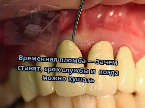 Сколько дней может болеть зуб после временной пломбы