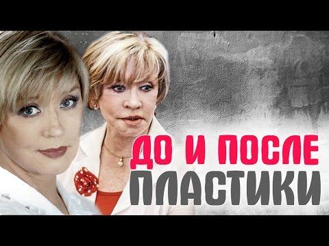 Маша Малиновская, Роза Сябитова и другие Российские звезды до и после пластики