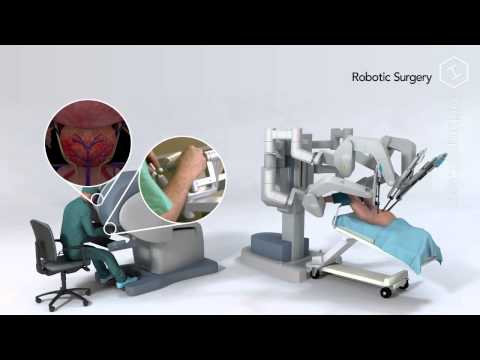 Robot Assisted Prostatectomy