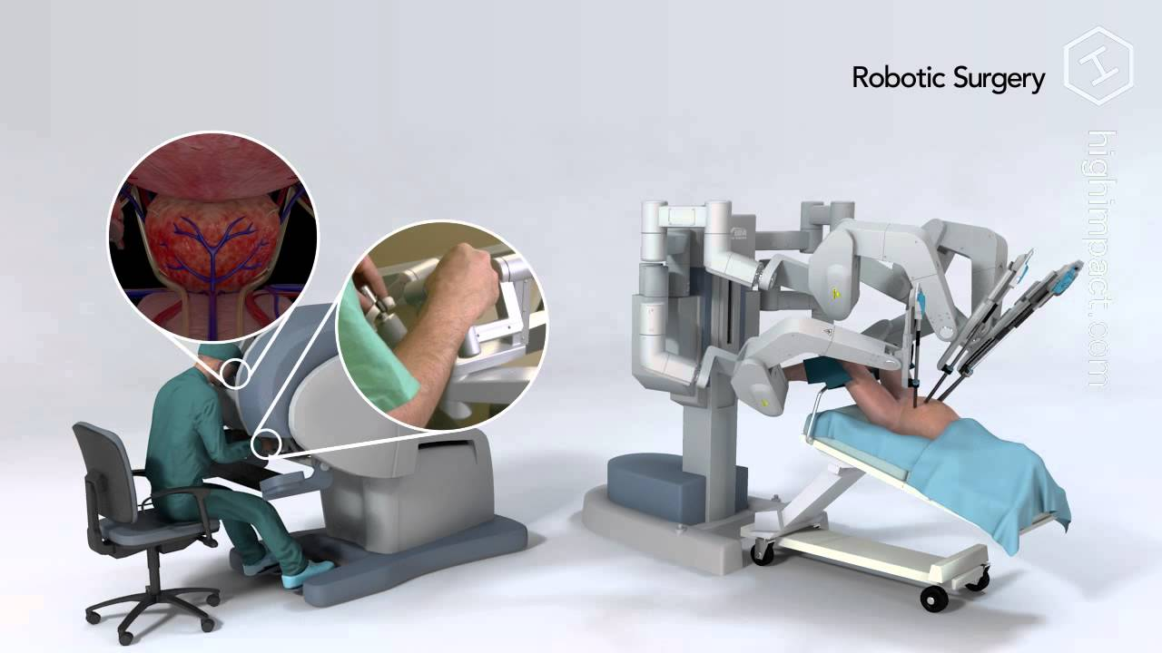 Robot Assisted Prostatectomy Youtube
