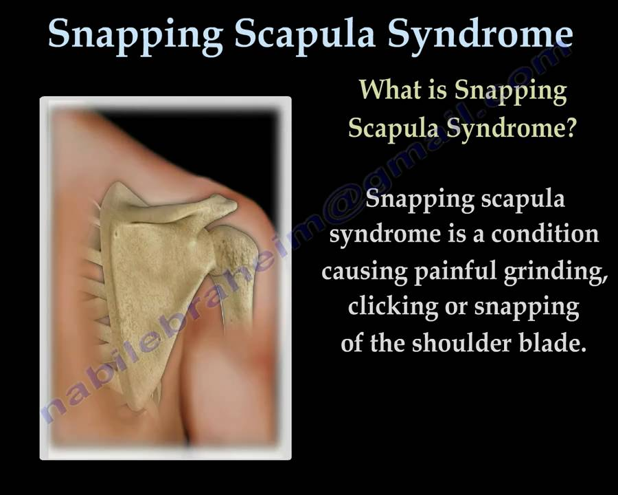 Snapping Scapula Syndrome Everything You Need To Know Nabil
