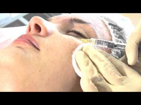 Биоревитализация кожи. Описание процедуры