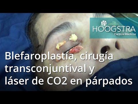 Blefaroplastía, cirugía transconjuntival y láser de CO2 en párpados (16154)