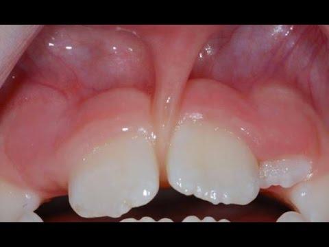 Операция пластики уздечки верхней губы (френулопластика) при диастеме