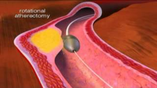 Atherectomy [www.keepvid.com]