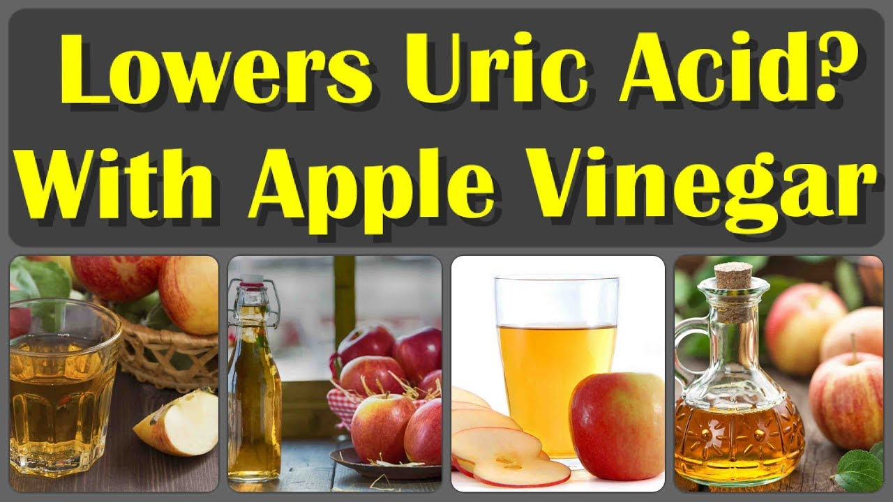 Does Apple Cider Vinegar Help Gout | Examples and Forms