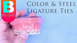 [BRACES EXPLAINED] Color and Steel Ligature Ties