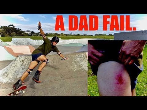Why a Dad shouldn't skateboard |  (Ft. How to MUM)  #COOLDAD