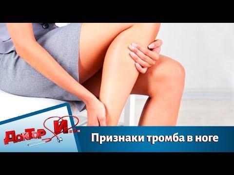 Признаки тромба в ноге | Доктор И