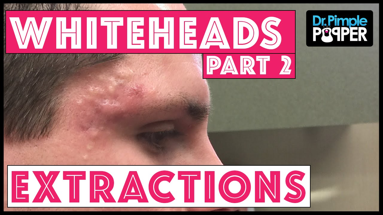Dr  Pimple Popper Extracts Whiteheads Cysts From Teen On Youtube