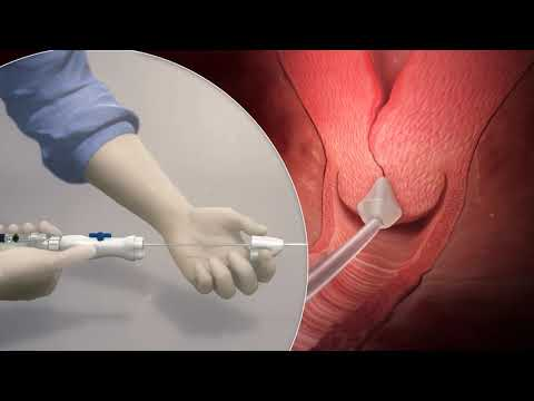 Definity Cervical Dilator - Product Animation