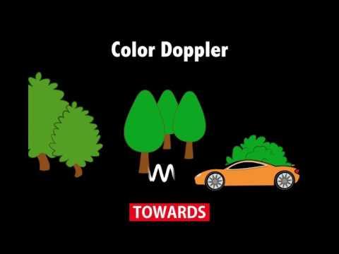 Ultrasound Physics Scanning Modes Color Doppler