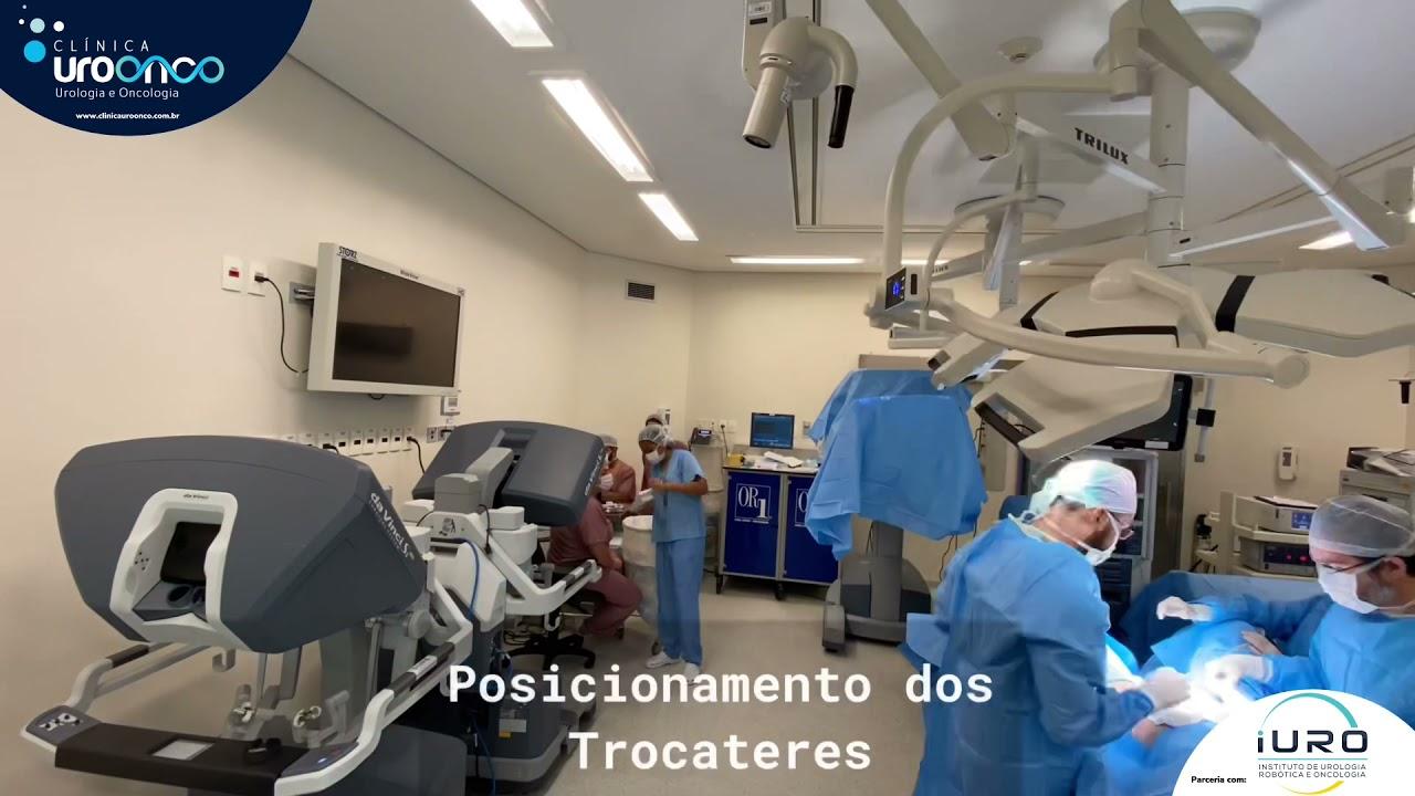 Cirurgia Robótica da Próstata. Equipe mostra o passo a passo