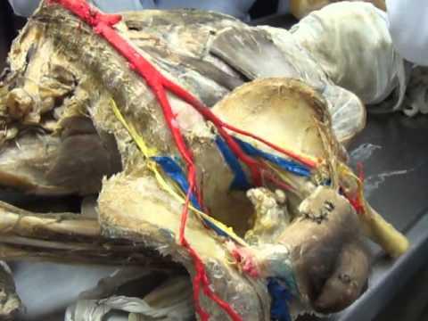 AORTA TORACICA Y ABDOMINAL Anatomia Practica FACÍL - YouTube