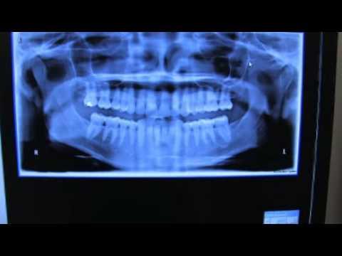 Sarasota Implant Dentist Dental Implants Sarasota FL