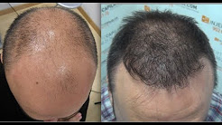 6493. Hair Transplant by FUE Technique. Advanced Alopecia. Injertocapilar.com. 577/2011