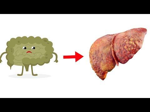 Diese Darmbakterien können Leberschäden verursachen!