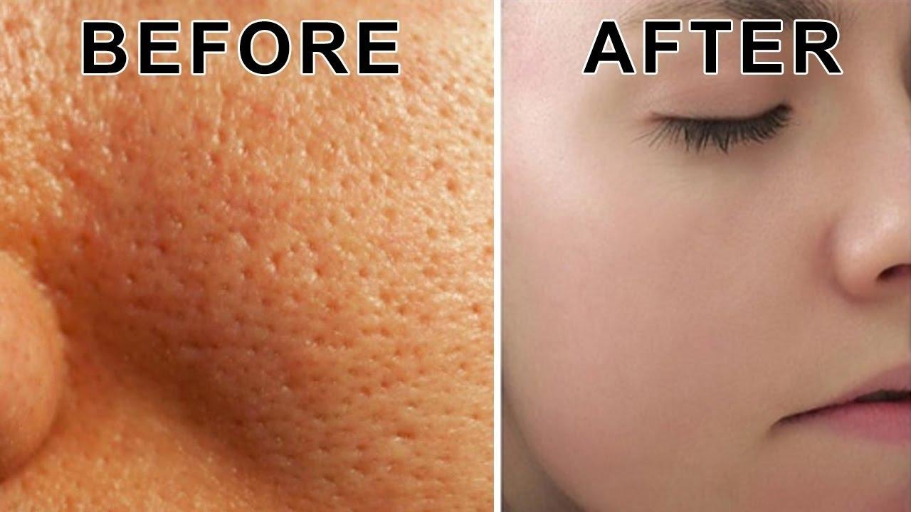how to close pores after shaving