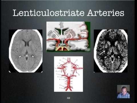 MRI & CT Stroke