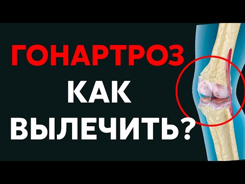 Гонартроз, артроз коленного сустава | Доктор Черкасов