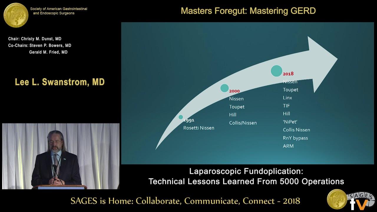 5,000 laparoscopic antireflux surgeries: Technique evolution & results