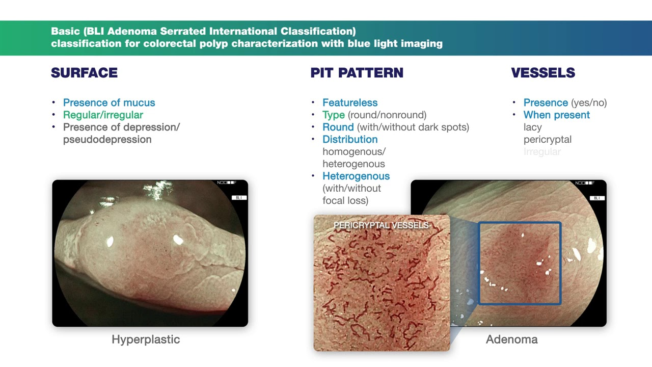 hight resolution of basic classification colonic polyps