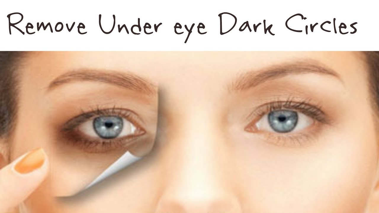 How to Remove Under eye Dark Circles |Home Remedies to ...