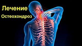 Лечение остеохондроза народными средствами- боли при остеохондрозе | #edblack
