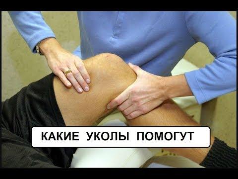 укол гиалуроновой кислоты в коленный сустав цена