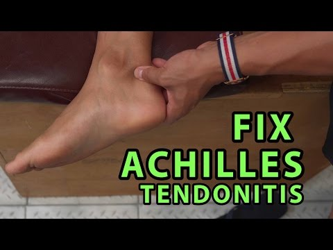 "How to Fix Achilles Tendonitis In ""4 Minutes"""