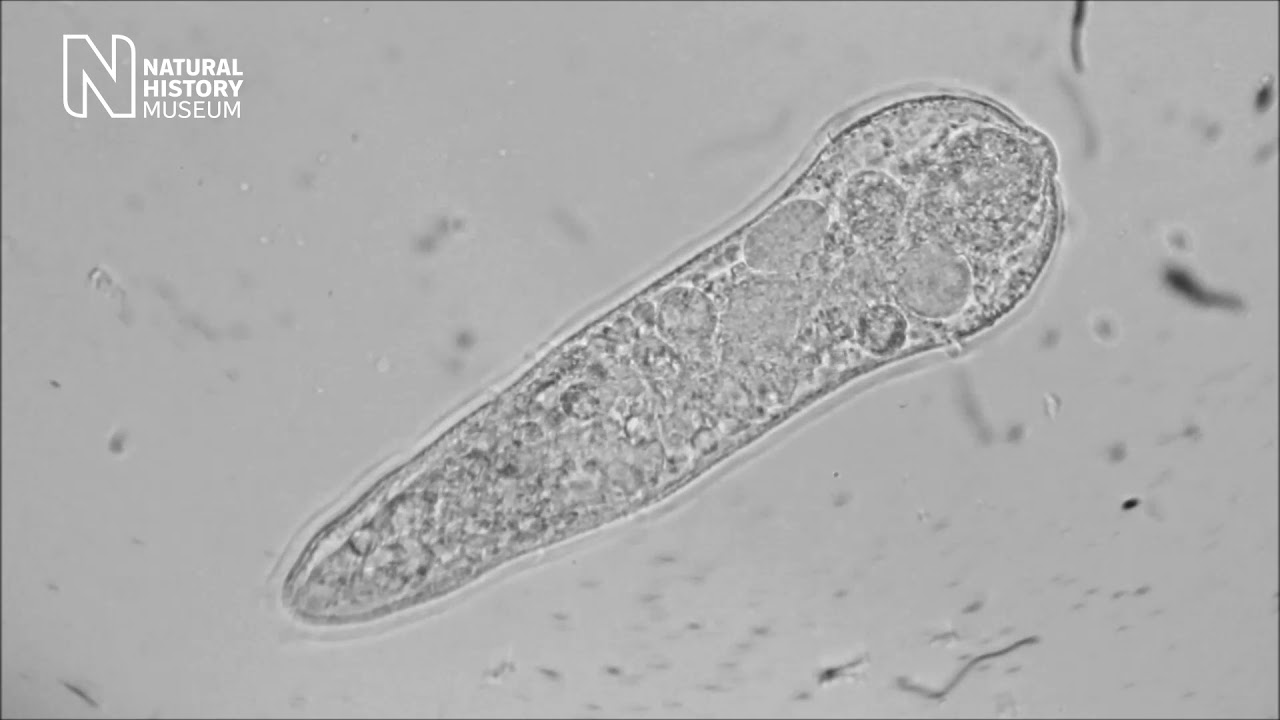 bilharzia urinary tract