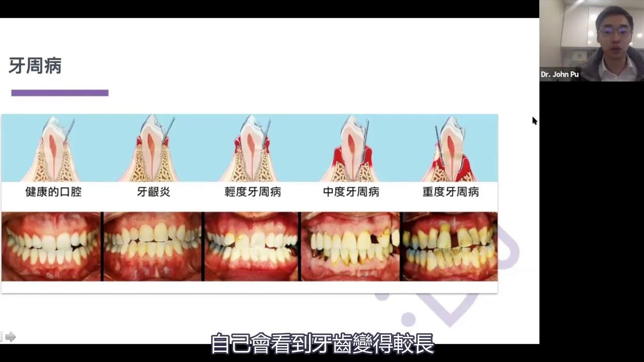 忽略牙周病才會晚年脫牙? - YouTube