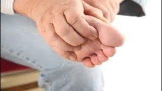 Incham significa suas coçam e que quando e pés o mãos