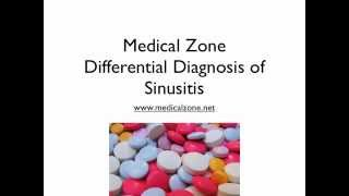 Medical Zone - Differential Diagnosis of Sinusitis