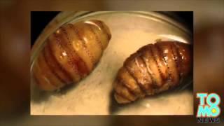 BEURK!!: Un homme revient de voyage avec 20 asticots sous sa peau