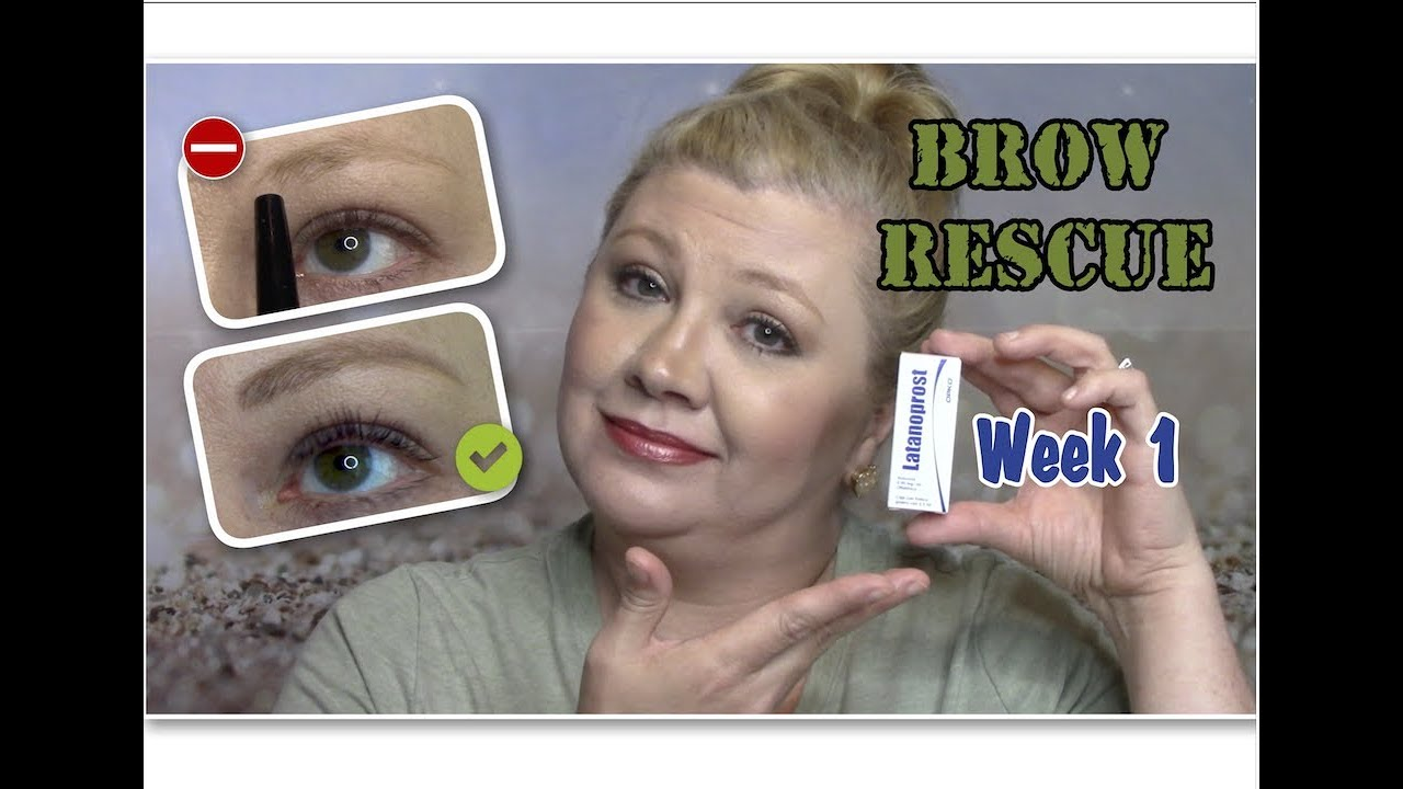 Brow Rescuewk 1how To Grow Eyebrows Fast Wlatisse Careprost