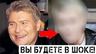 Баскова не узнать: фото до и после пластики шокируют!