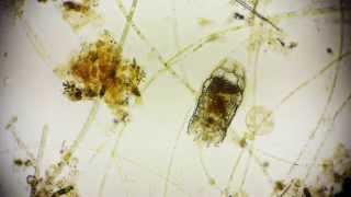 Brachionus - Rädertierchen - Rotifer - Leben im Wassertropfen - microcosmos in Full HD