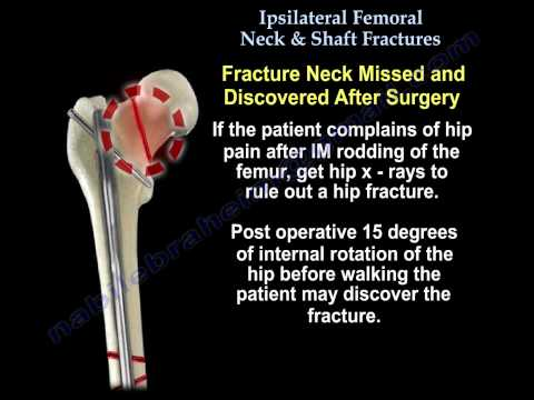 Ipsilateral Femoral  Neck & Shaft Fractures - Everything You Need To Know - Dr. Nabil Ebraheim